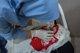 La violencia en Afganistán destruyó o cerró 162 centros médicos en 2019