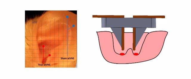 Esquema del dispositivo de electroestimulación