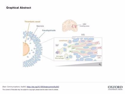 Descubren cómo las células del sistema inmunitario ayudan a expandir los tumores cerebrales