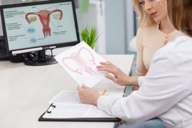 Médico, consulta, ginecología, ovario, paciente, útero