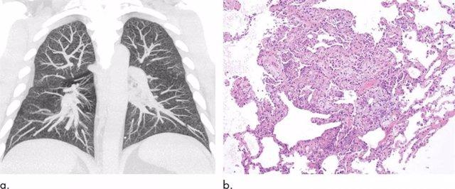 Hallazgos anormales de imágenes clave para el diagnóstico EVALI en vapeadores.