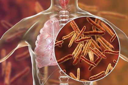Investigadores españoles lideran un gran proyecto internacional para desarrollar nuevos antibióticos en tuberculosis