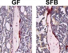 Fosfatasa ácida resistente a los tartratos (TRAP) teñida en las tibias de ratones libres de gérmenes (GF) y de bacterias filamentosas segmentadas (SFB) monoasociadas
