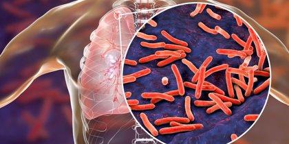 Una mutación 'letal' hizo que las bacterias de tuberculosis sean resistentes a antibióticos importantes