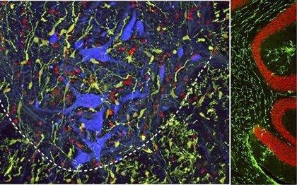 Desarrollan un nuevo método en ratas para reducir el riesgo de más lesiones en la médula espinal