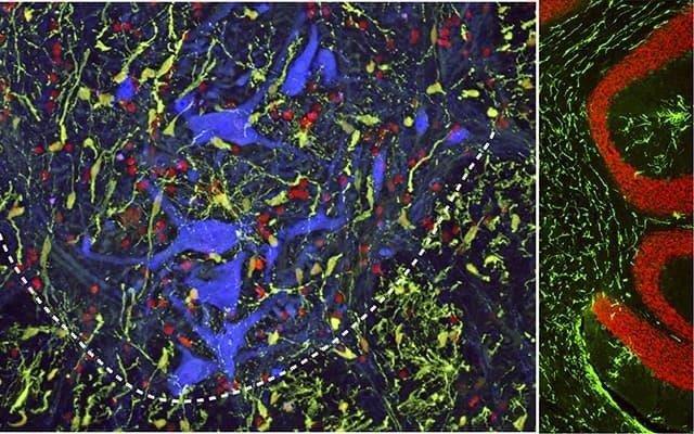 Una micrografía muestra la migración efectiva de oligodendrocitos humanos inyectados subpialmente (coloreada aquí en verde) en la materia gris de la médula espinal (izquierda) y en el cerebelo (derecha) de una rata inmunodeficiente.