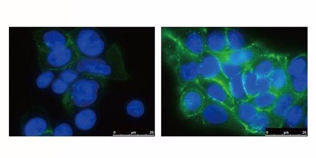 El silenciamiento de BACH1 (imagen derecha) aumenta la producción de cadherina E (verde), manteniendo las células del páncreas unidas y haciendo más difícil que hagan metástasis.