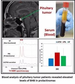 El análisis de sangre de los pacientes con tumores pituitarios revela niveles elevados de BHB en los prolactinomas