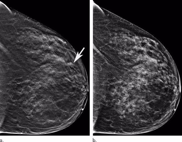 Las mujeres mayores se benefician significativamente cuando se las examina con una mamografía 3-D
