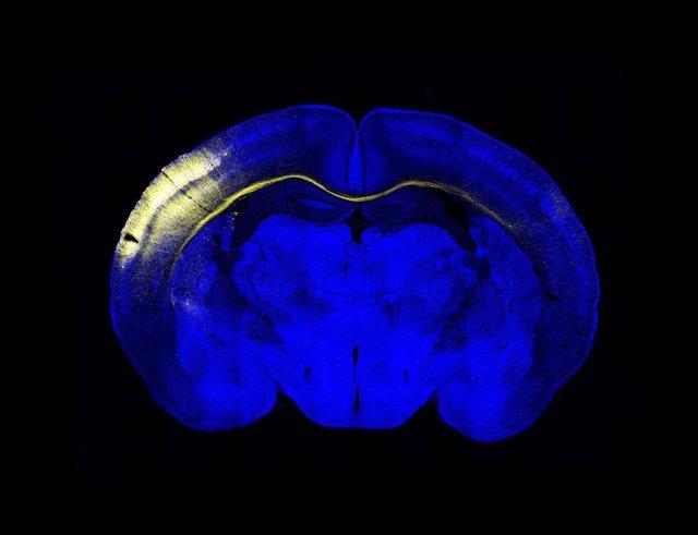 Sección horizontal del cerebro del ratón. Un grupo de neuronas de la corteza iluminadas en amarillo extienden sus axones a través del cuerpo calloso para conectar con el hemisferio contralateral.