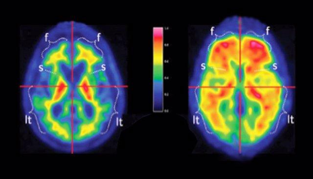 Placas de beta amiloide