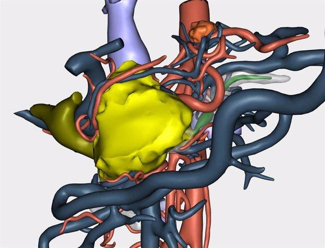 Reconstrucción 3D de un tumor para abordar su resección en una cirugía a paciente oncológico