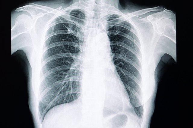 Pulmones, radiografía de tórax