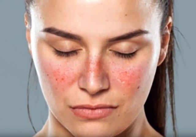 Los pacientes de lupus que toman su medicación tienen menor riesgo de padecer di