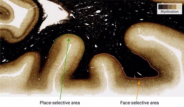 La mielina es una cubierta grasosa que aisla y protege muchas fibras nerviosas.