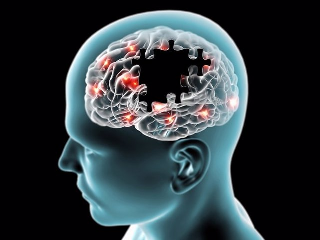 Cerebro en la enfermedad de Parkinson