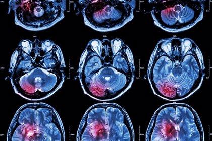 Una nueva arma para acabar con los tumores cerebrales y de tejidos blandos