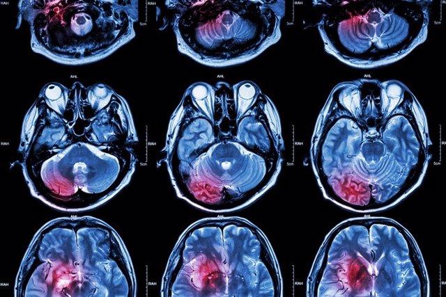 Tumor cerebral.
