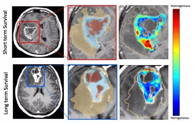 Un ejemplo de las resonancias magnéticas que muestran indicaciones de supervivencia a largo y corto plazo de pacientes con neuroblastoma.