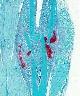 Una sección histológica de una fractura ósea de ratón.