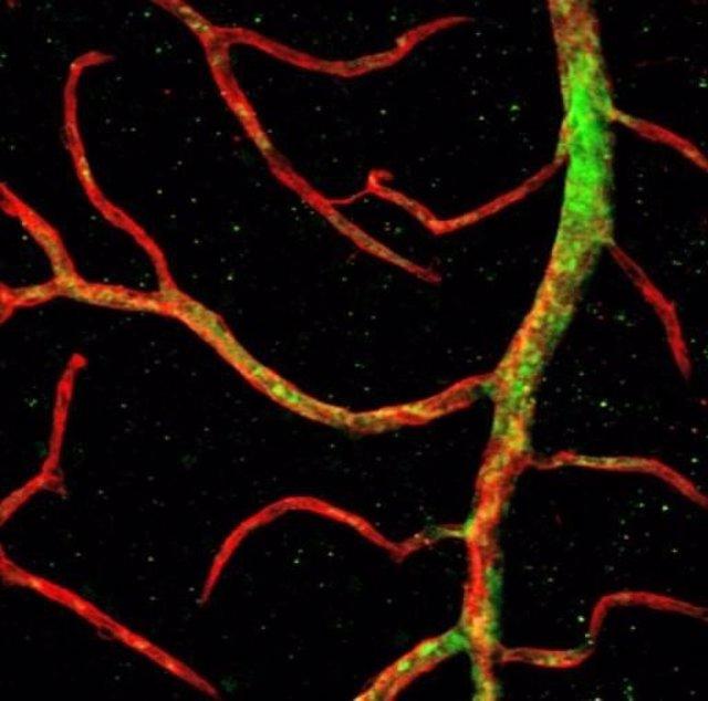 Las células progenitoras vasculares humanas (verde), hechas de células madre 'ingenuas' cultivadas en el laboratorio de Zambidis, se injertan en vasos sanguíneos (rojo) en una retina de ratón.