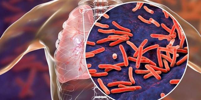 Bacilo de la tuberculosis