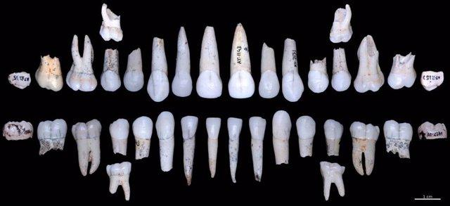 El esmalte dental de los homínidos de Atapuerca crecía más rápido