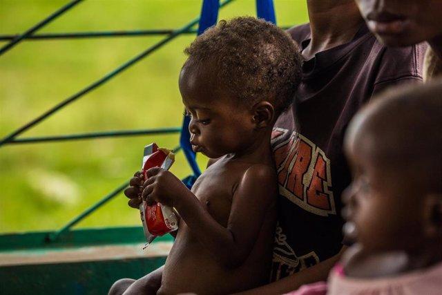 Un niño desnutrido en República Democrática del Congo