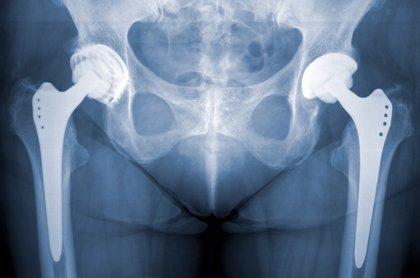 Por qué fallan las prótesis de cadera: Aflojamientos e infecciones