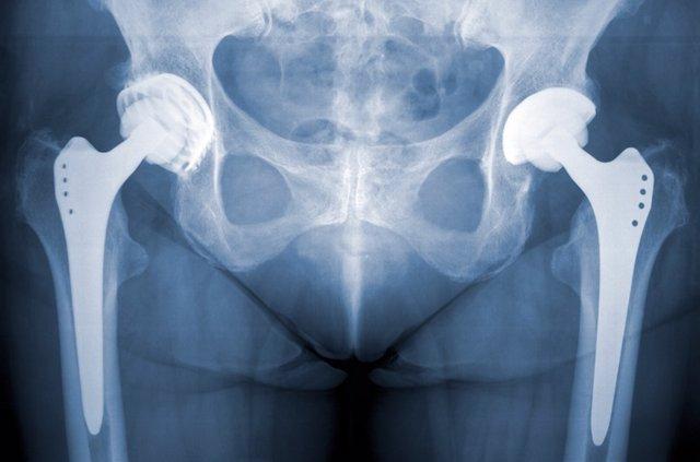 Prótesis de cadera.