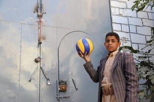 Eyad, un niño yemení que ha perdido un ojo
