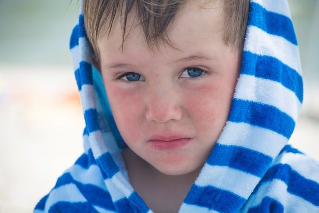 Little boy with atopic dermatitis in a striped bathrobe