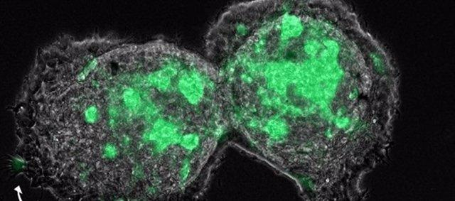 Los fibroblastos asociados con el cáncer (CAF) actúan como líderes de la invasión colectiva de las células tumorales en modelos de cultivo 3D.