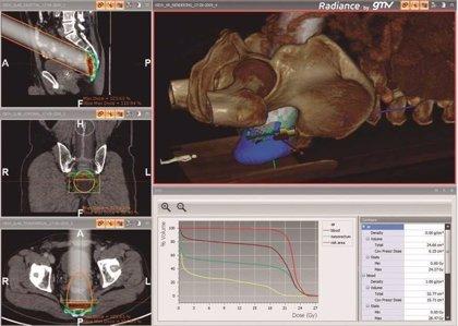 Experto destaca los beneficios de la radioterapia intraoperatoria en el cáncer de colon