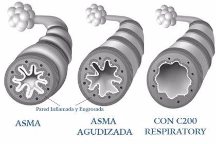 Una empresa española presenta una innovación para el tratamiento de ahogo e inflamación de los pulmones