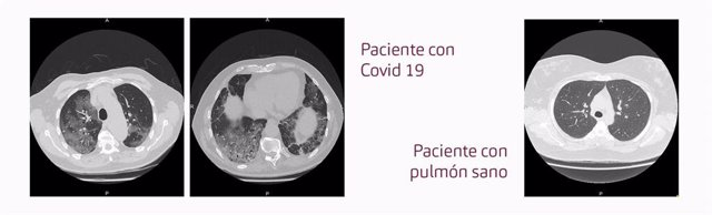 Pulmones de un paciente con Covid-19