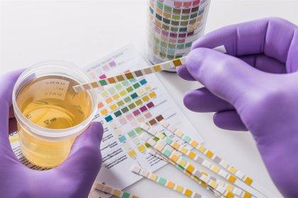 Una simple prueba de orina puede revelar la presencia de cáncer de pulmón