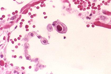 Descubren un tipo raro de inmunodeficiencia