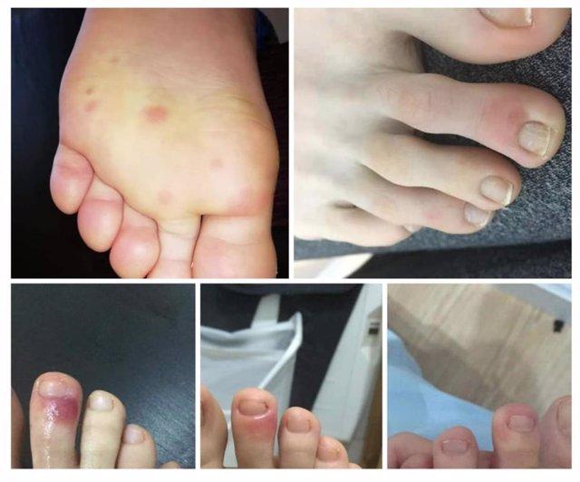 Sintomas del Covid-19 en los pies de los niños