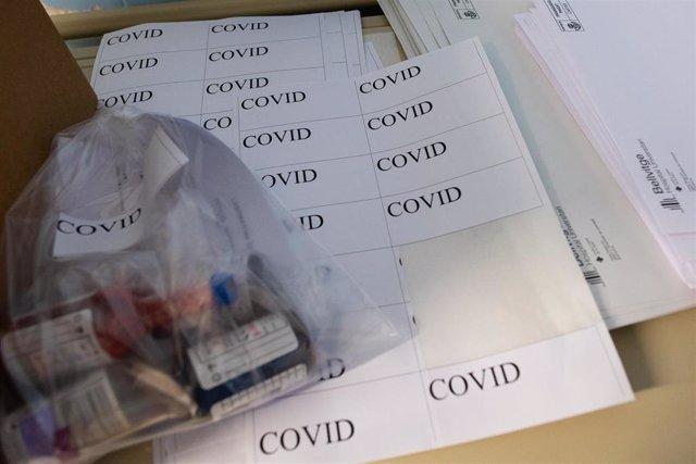 Muestras para análisis de coronavirus