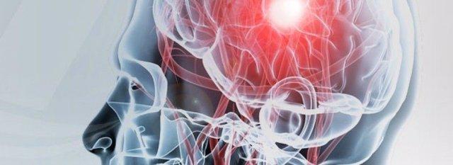 Reconocimiento de las secuelas de un daño cerebral adquirido