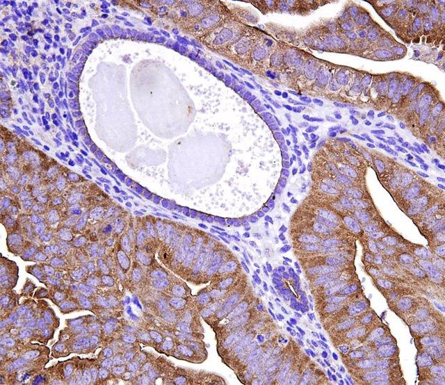 Nuevos marcadores moleculares para el diagnóstico de cáncer de endometrio para discriminar muestras tumorales y normales