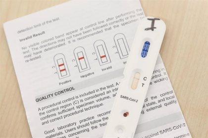 Farmacias piden autorización para realizar los tests rápidos