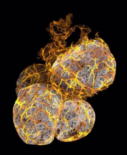 Descubren un nuevo tipo de célula inmunitaria que ayuda a mantener sano el tejido mamario