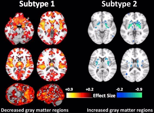 Nuevo tipo de esquizofrenia detectado por investigadores españoles