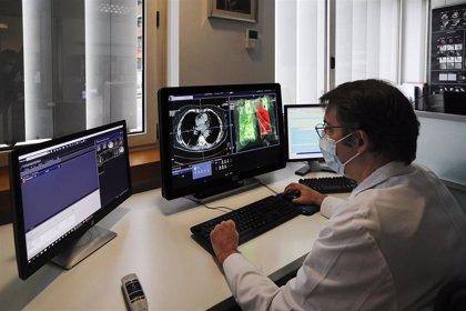 Se inicia un estudio internacional para caracterizar la neumonía por Covid-19