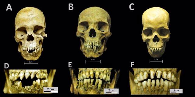 Esqueletos africanos del México colonial cuentan la vida de los esclavos
