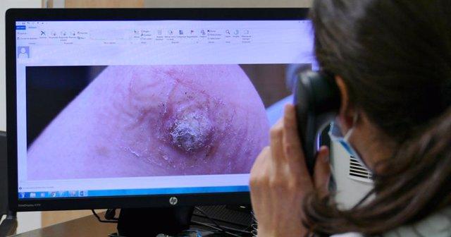 Consultas de teledermatología del Hospital Quirónsauld Madrid
