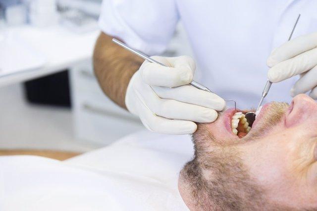 Dentista, boca, paciente. Periodontitis.