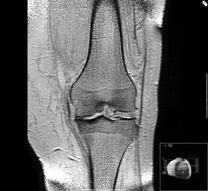 Diseñan un calzado biomecánico que reduce el dolor de la artrosis de la rodilla